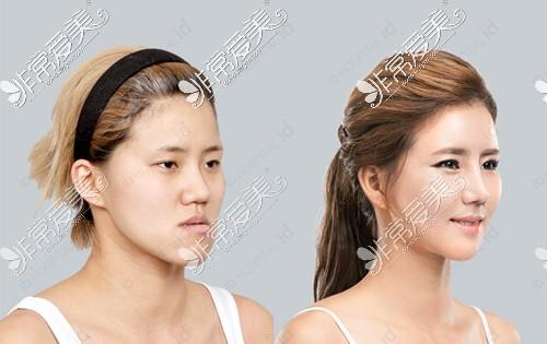 韩国ID整形医院双鄂整形前后对比