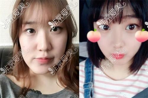 韩国爱宝Everm整形医院双鄂手术前后对比