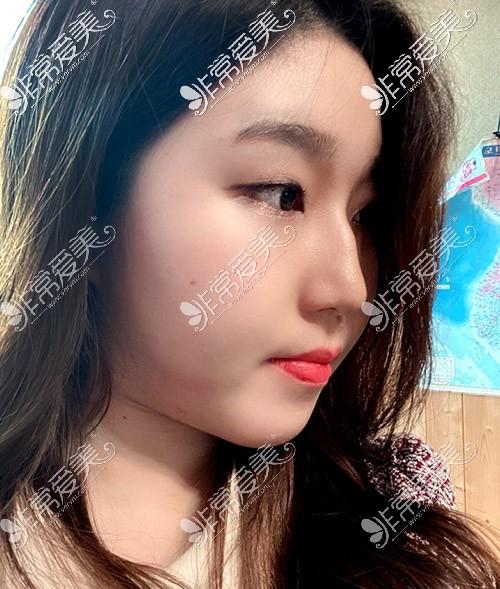 韩国优雅人驼峰鼻隆鼻矫正手术真人秀
