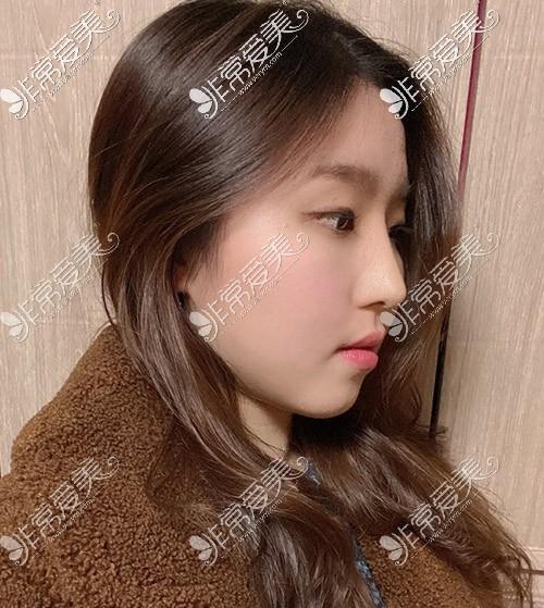 女人驼峰鼻手术效果