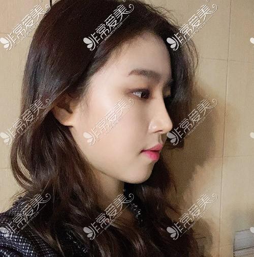韩国优雅人整形隆鼻术后2个月图片