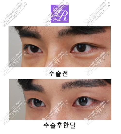 韩国莱丽整形外科双眼皮变单眼皮效果