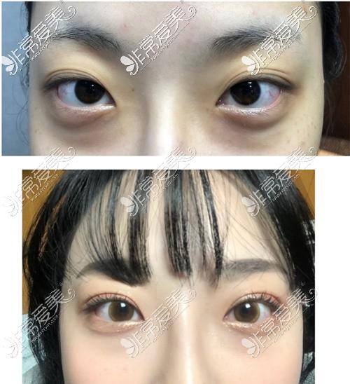韩国大眼睛整形外科眼修复效果