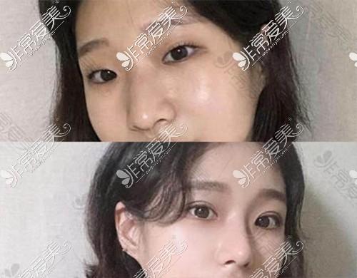 韩国1mm整形外科双眼皮效果