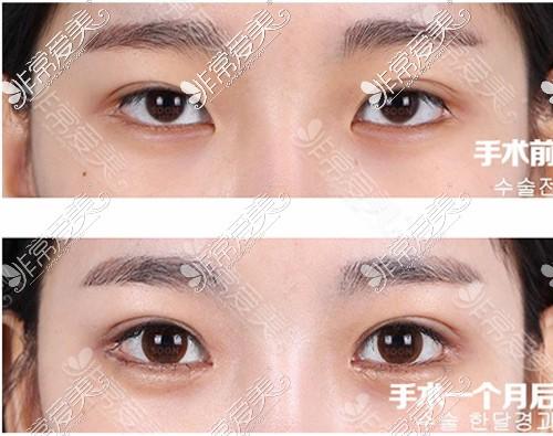 韩国soonplus整形外科双眼皮修复效果
