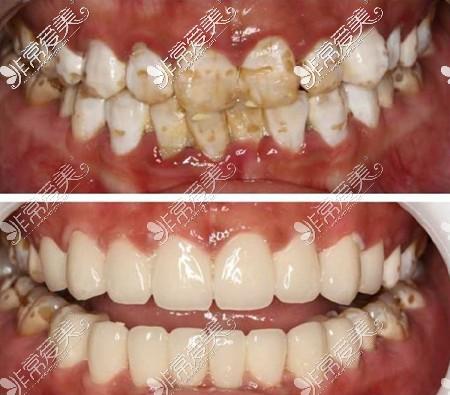 短时间内让牙齿又白又好看的瓷贴面效果图