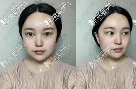 韩国BornDi整形医院手术怎么样