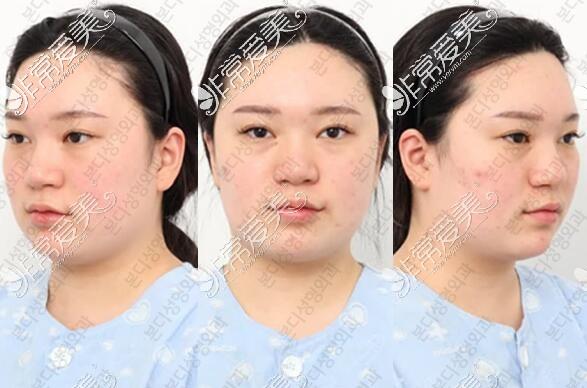 韩国BornDi整形医院下颌角手术术前照