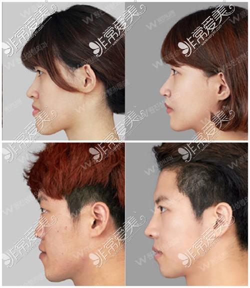 韩国原辰医院突嘴手术前后对比照片