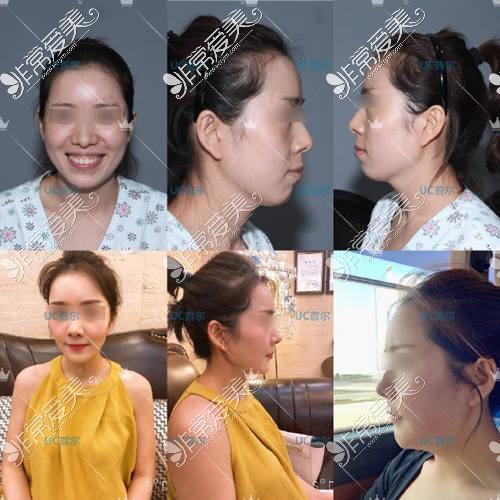 韩国UC首尔牙科突嘴手术前后对比照片