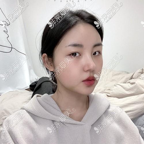 韩国现代美学轮廓整形照片