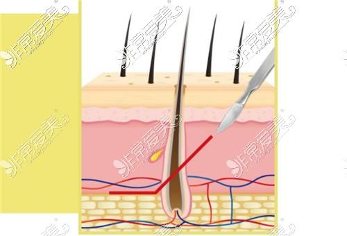 韩国zell整形外科额头缩小切开方式示意图