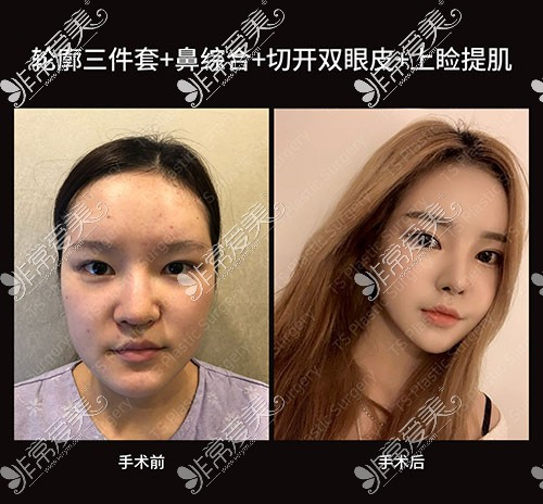 韩国TS轮廓眼鼻整形前后对比