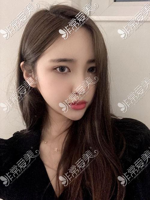 韩国TS整形真人秀照片