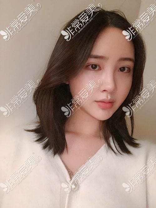 韩国TS轮廓整形术后照片