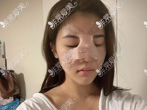 韩国歌柔飞隆鼻手术包扎照片