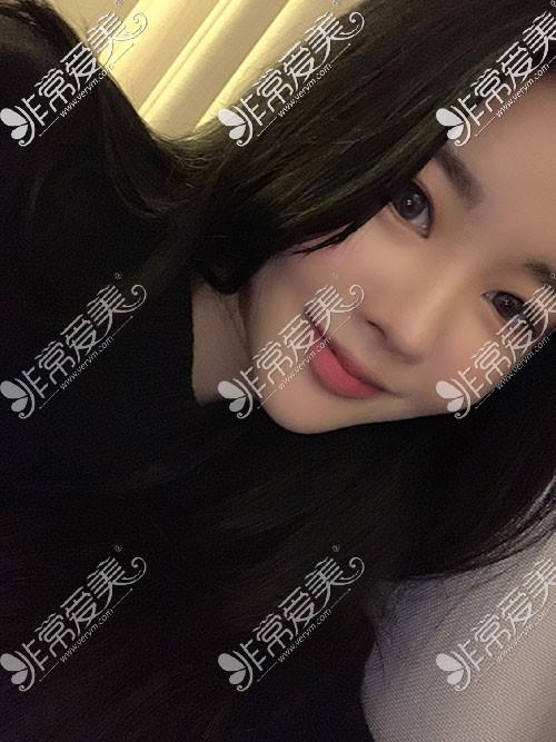 歌柔飞隆鼻手术照片