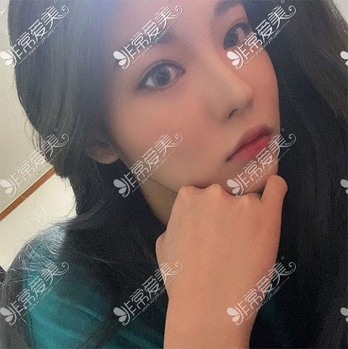 韩国歌柔飞隆鼻图片