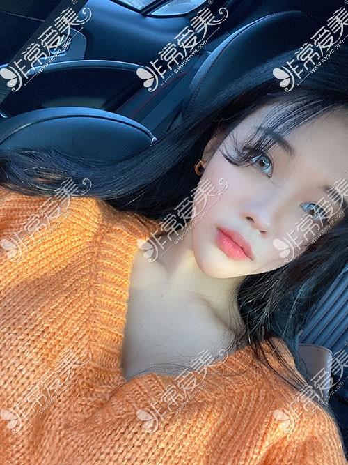 韩国歌柔飞隆鼻手术照片图