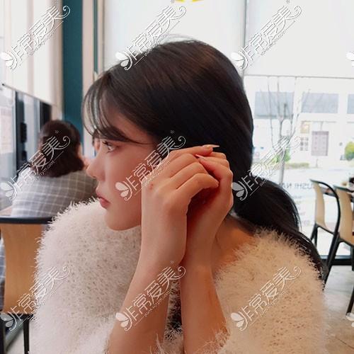 韩国歌柔飞3D打印隆鼻侧面照片
