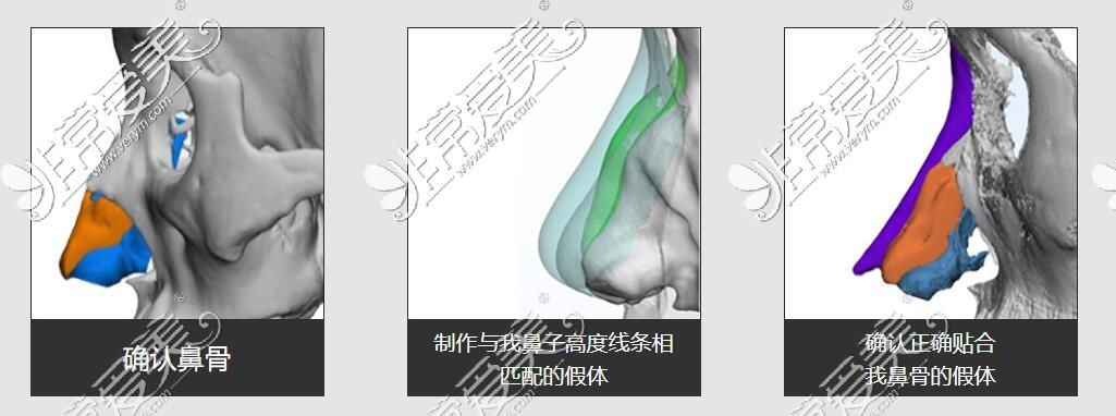 歌柔飞3d打印隆鼻手术