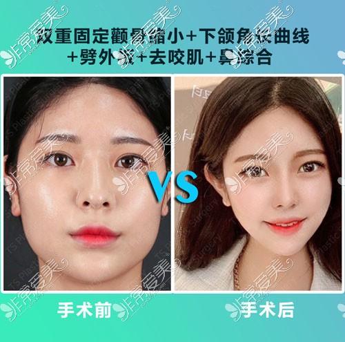 韩国TS隆鼻手术对比图