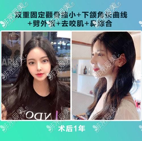 韩国TS整形隆鼻术后一年照片