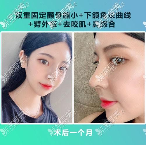 韩国TS整形隆鼻手术术后一个月