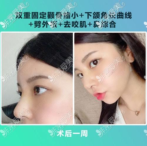 韩国TS隆鼻+轮廓整形术后一周