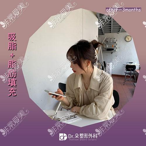 韩国dr朵面部吸脂图片
