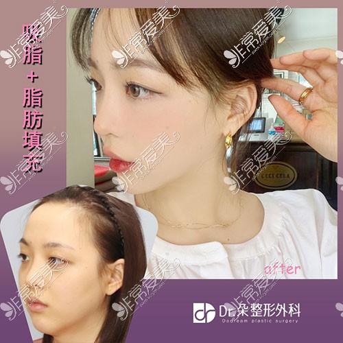 韩国dr朵面部吸脂前后对比图