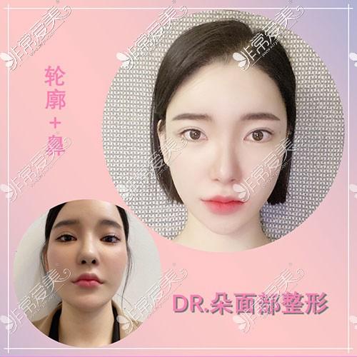 韩国dr朵面部轮廓手术对比照