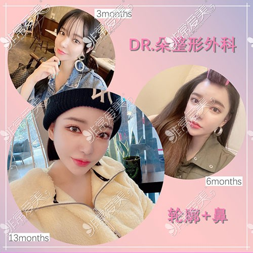 韩国dr朵隆鼻轮廓整形照片