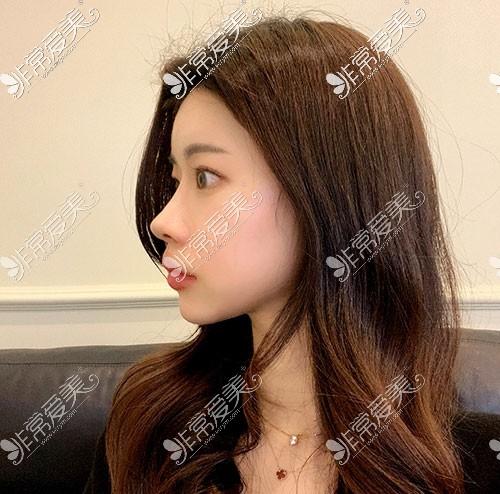 韩国优雅人初鼻整形侧面照片