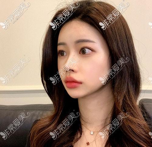 韩国优雅人初鼻整形术后2周