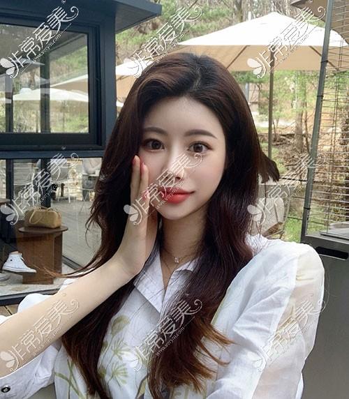 韩国优雅人整形隆鼻图片