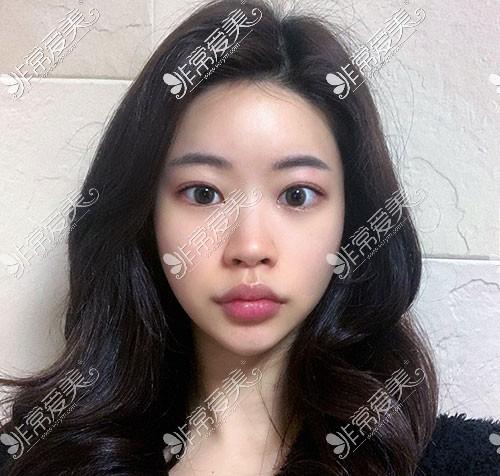 韩国优雅人隆鼻术前照片