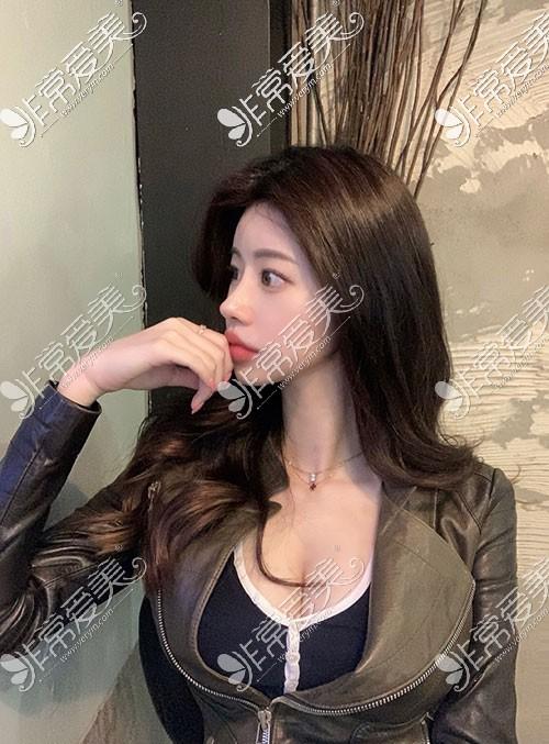 韩国优雅人整形隆鼻照片