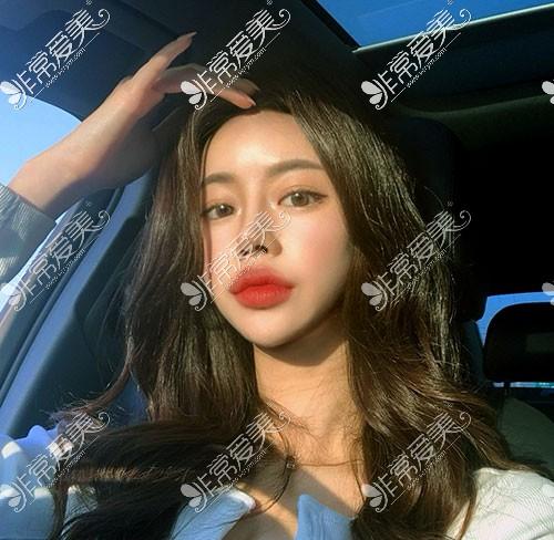 韩国优雅人隆鼻术后两个月