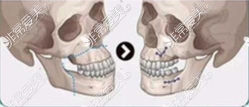 双颌手术示意图