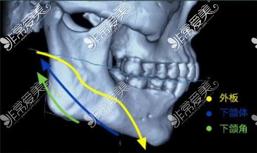 下颌角轮廓整形图示