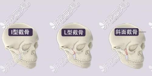 颧骨颧弓轮廓手术示意图