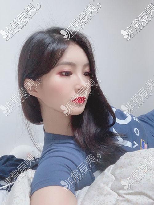 韩国snow面吸手术照片