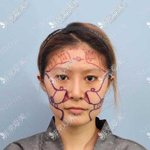 韩国snow面部吸脂术前设计照片