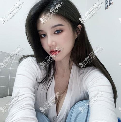 韩国snow面吸脂肪填充照片
