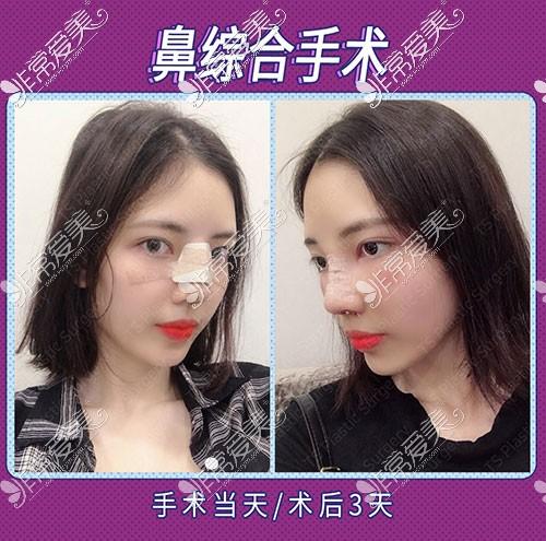 韩国TS整形隆鼻恢复图