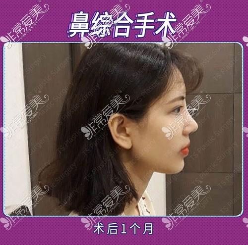 韩国TS整形隆鼻术后一个月