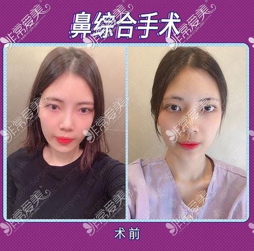韩国TS整形隆鼻术前照