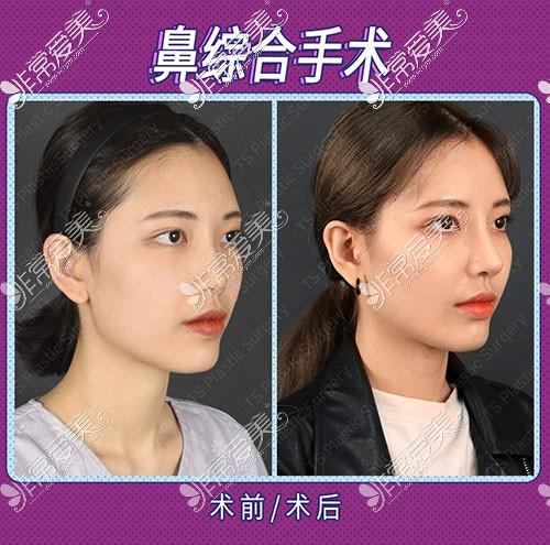 韩国TS整形隆鼻术前术后照片