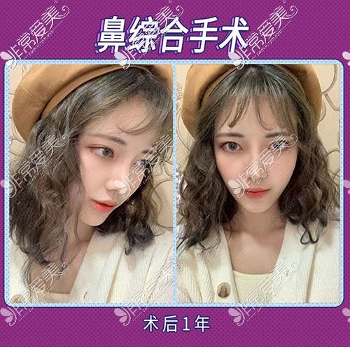韩国TS整形隆鼻术后一年